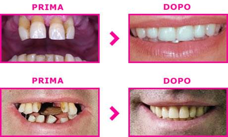 Prezzi convenienti per impianti dentali di qualità