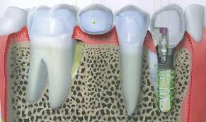 prezzi impianti dentali torino