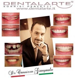 faccette-dentali-3